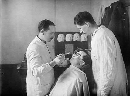 A wounded First World War soldier with facial injuries has a plaster cast made of his face so that a mask can be produced to cover his wounds.The work was undertaken at the 3rd General Hospital in Wandsworth, London.
