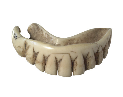 Ivory partial denture for lower jaw clasps: 17th century