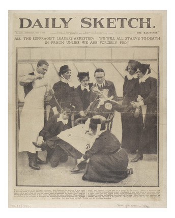 Method used for force feeding suffragettes: 1913