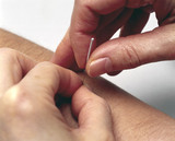 Demonstrating acupuncture, 2000.