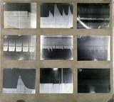 Nine electrocardiogram traces (ECGs), 1887-1903