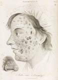 Two types of skin disease, 1822.