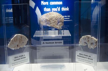 Alzheimer's disease exhibition, 1996. An