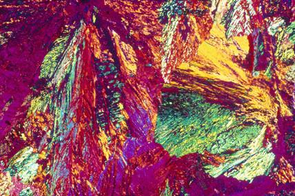 Aluminium bronze. Light micrograph.