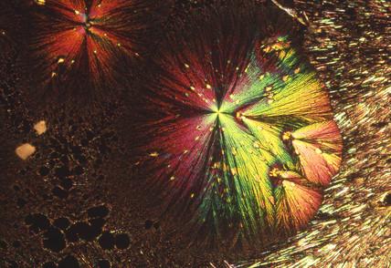 Ascorbic acid, light micrograph, 1990s.