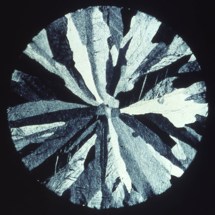 Pure zinc, sand cast (etched), light micrograph, 1990s.