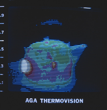 Thermal image of a kettle, c 1980s.