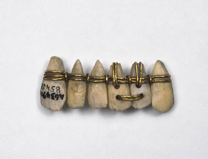 Phoenician denture, c 1000-210 BC.