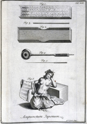 Acupuncture needles and their application, c 1690.