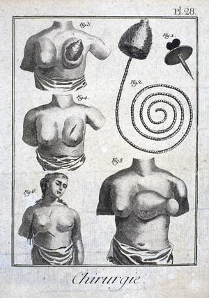 Mastectomy prosthetic, 1780.