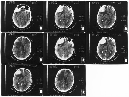 Brain scans, Atkinson Morley's Hospital, London, 20 November 1981.