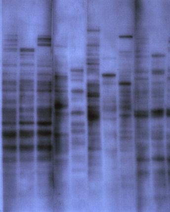 The first genetic fingerprint, 1984.