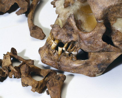 Bleadon Man's skull, 1999.