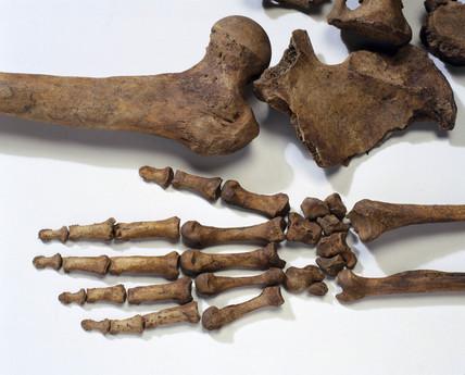 Bleadon Man's left hand and pelvic region, 1999.