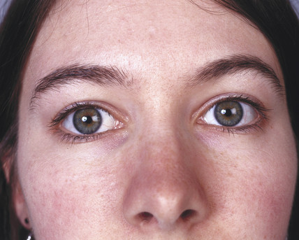 Woman with hazel eyes, May 2000.