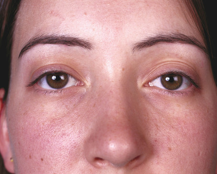 Woman with brown eyes, May 2000.