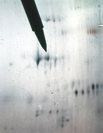 A 2D protein gel stained with silver.