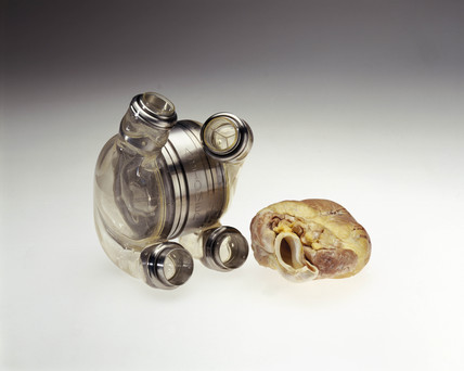 Artificial heart and transgenic pig's heart, 2000.