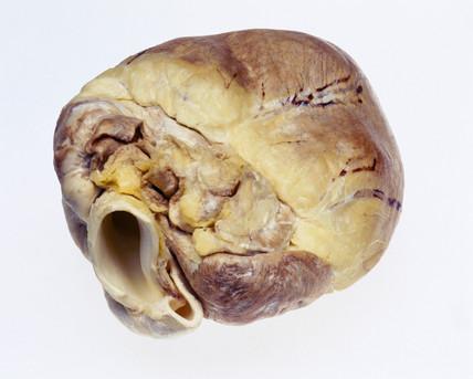 Transgenic pig's heart, 2000.