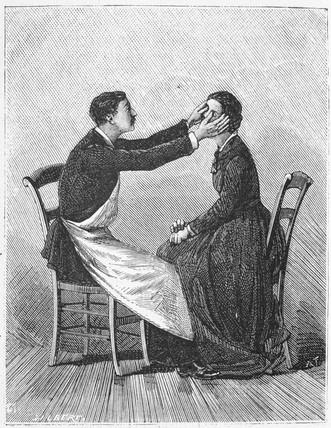Inducing hypnosis, 1881.