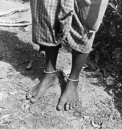 Feet of a tea plantation worker, Ceylon (Sr