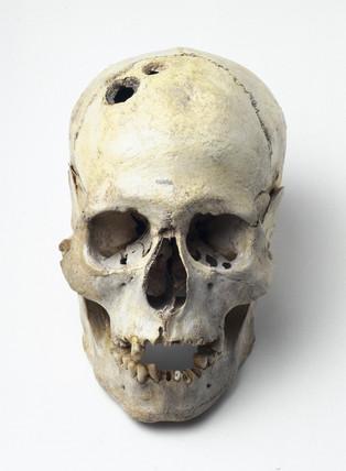Bronze Age trepanned skull, Jericho, Palestine, 2200-2000 BC.