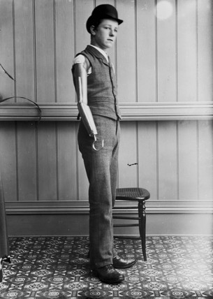 Man wearing an artificial arm, 1890-1910.