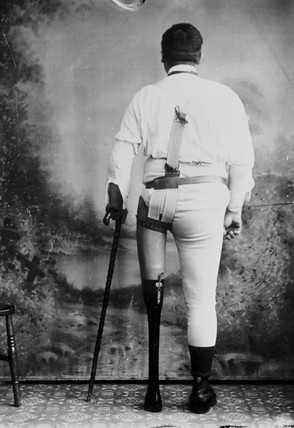 Man wearing an artificial leg, 1890-1910.