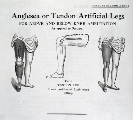 'Anglesea or Tendon Artificial Legs', 1920-1930.