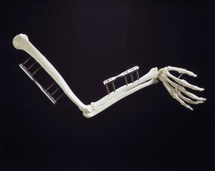 Skeletal arm with diamond-coated steel screws, 1998.