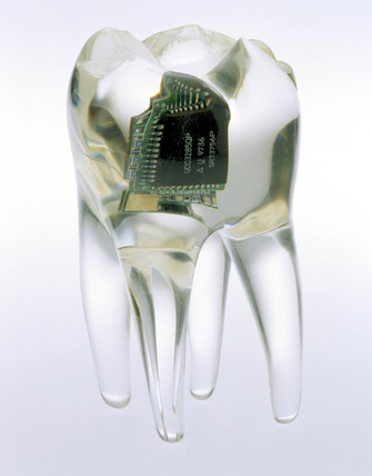 Audio tooth implant, 2002.