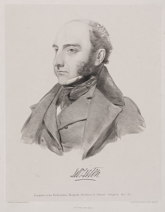 Robert Liston, Scottish surgeon, c 1842.