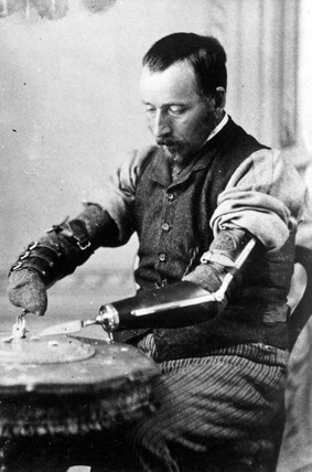 Man using a pair of artificial arms, 1890-1910.
