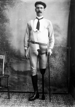 Man wearing an artificial leg, 1890-1910.