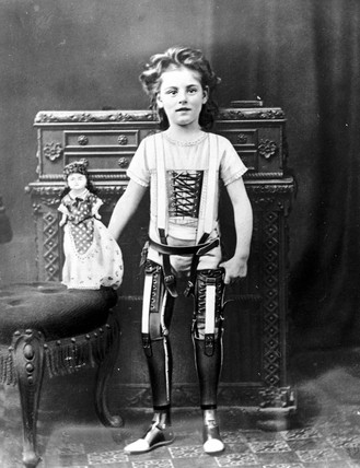 Girl wearing two artificial legs, 1890-1910.