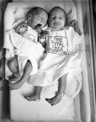 Test tube twins, Royal Free Hospital, Manchester, 28 April 1982.