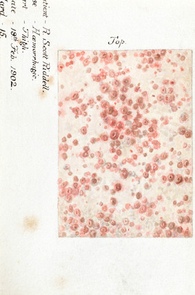 A hemorrhagic skin disease, 19 February 1902.