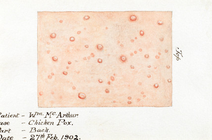 Watercolour of the skin disease chickenpox, 27 February 1902.