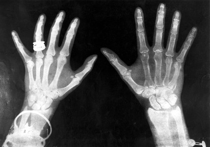 X-rays of the hands of King George and Queen Mary, 1896.