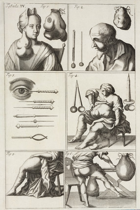 Patients exhibiting their symptoms, 1706.