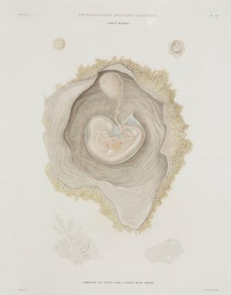 Human embryo, c 1847-1859.