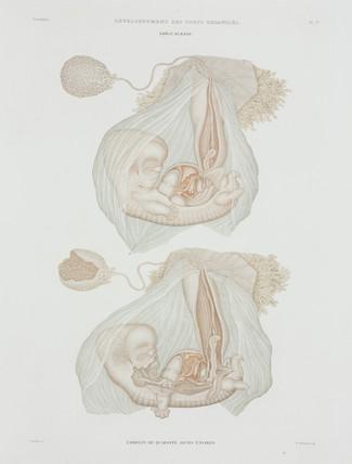 Human foetus at 40 days, c 1847-1859.