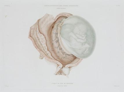 Human foetus at four months, c 1847-1859.