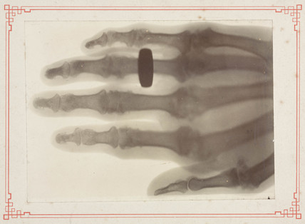 X-ray of a human hand, 1895-1915.
