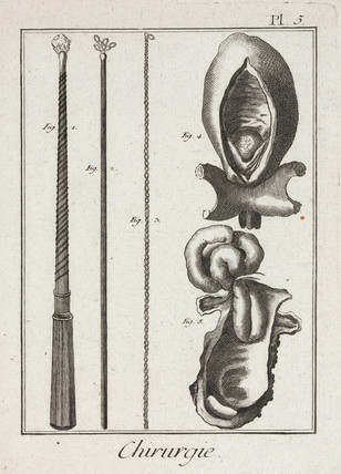 Surgical instruments and diagrams of parts of the body, 1780.