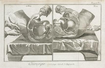 Abdominal surgery, 1780.