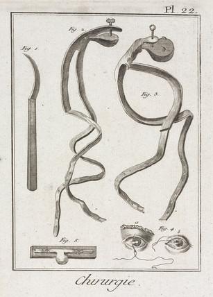 Eye surgery, 1780.