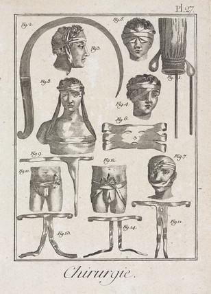 Bandaging after surgery, 1780.