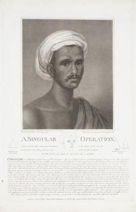 'A Singular Operation', India, 1795.