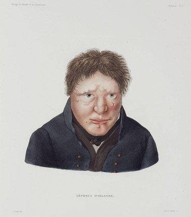 Male leper, Iceland, early 19th century.
